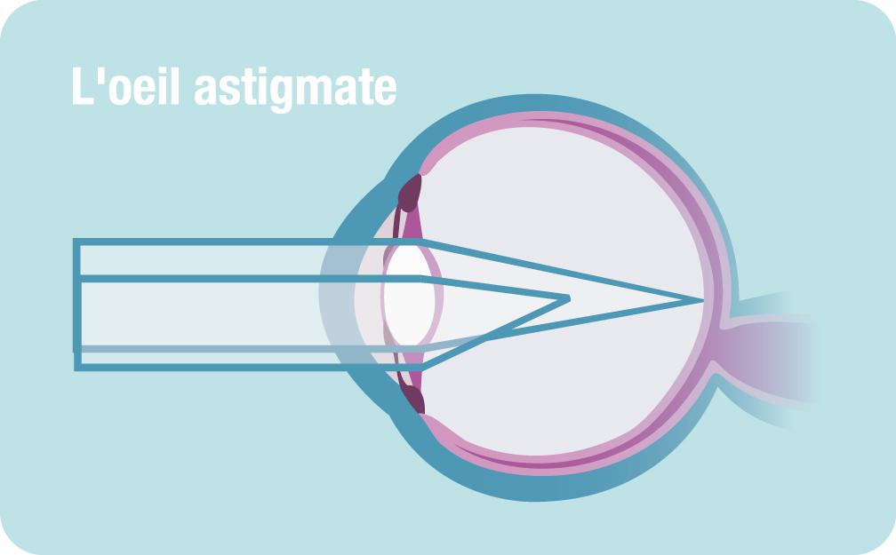 vision astimate et operation astigmatisme