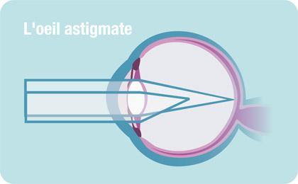 Oeil astigmate et opération astigmatisme