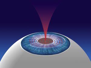 Laser keratome Visumax SMILE